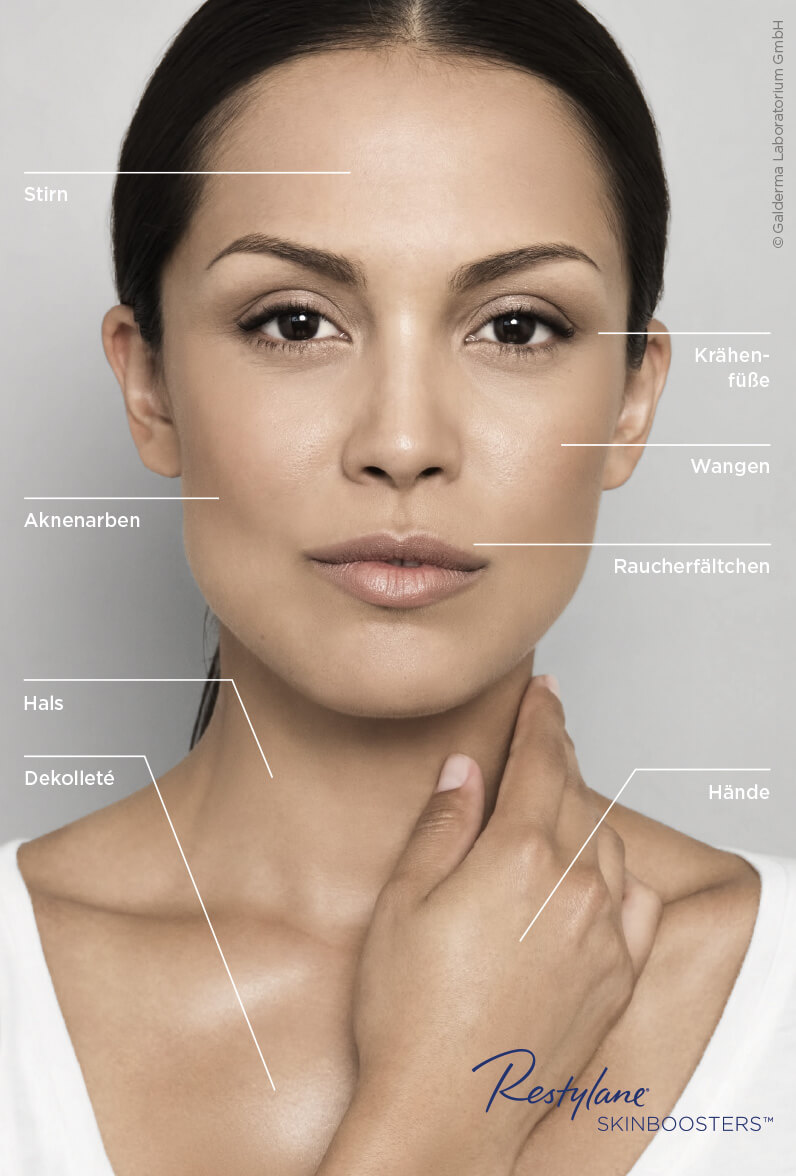 Faltenkorrektur in München Solln: Restylane Skinbooster