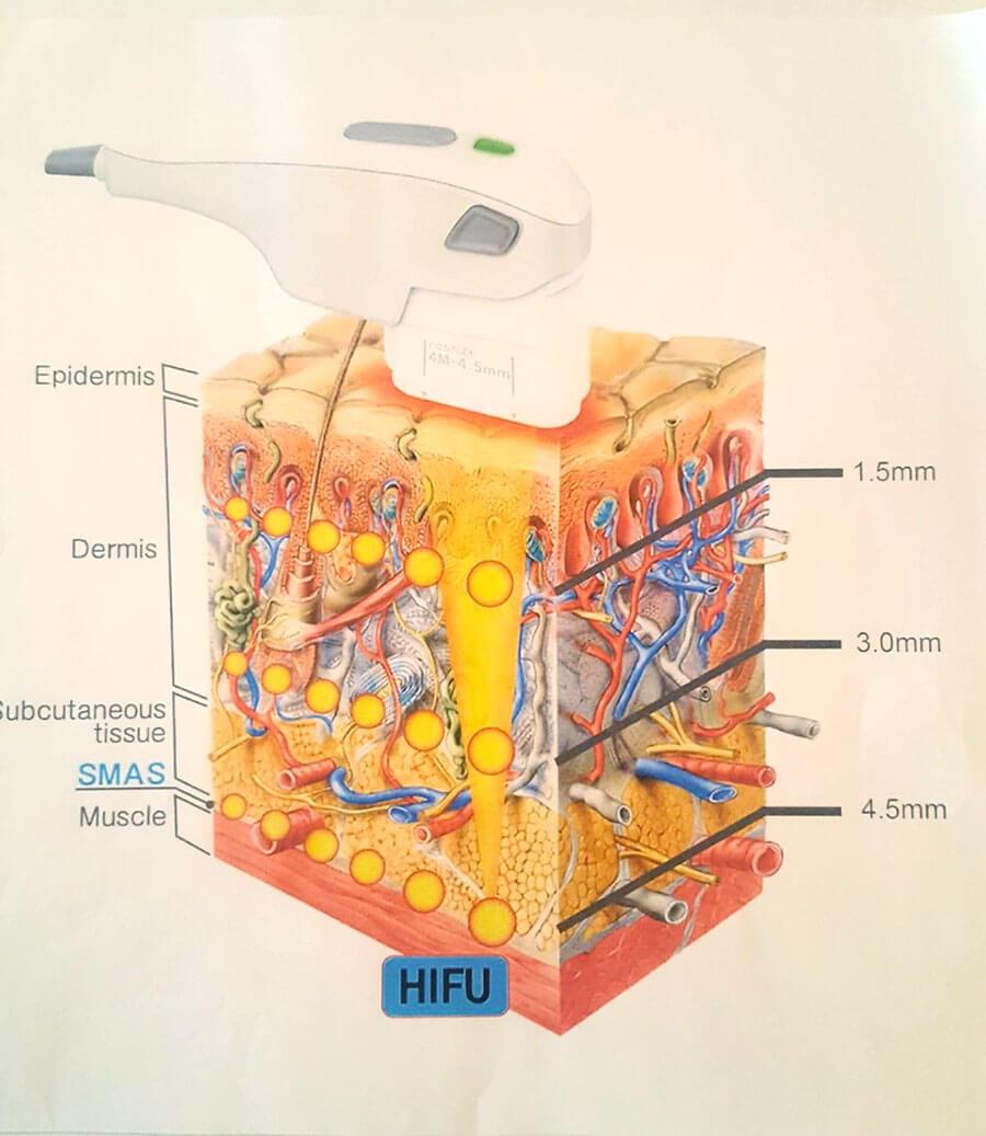 HIFU-Ultraschall-Lifting